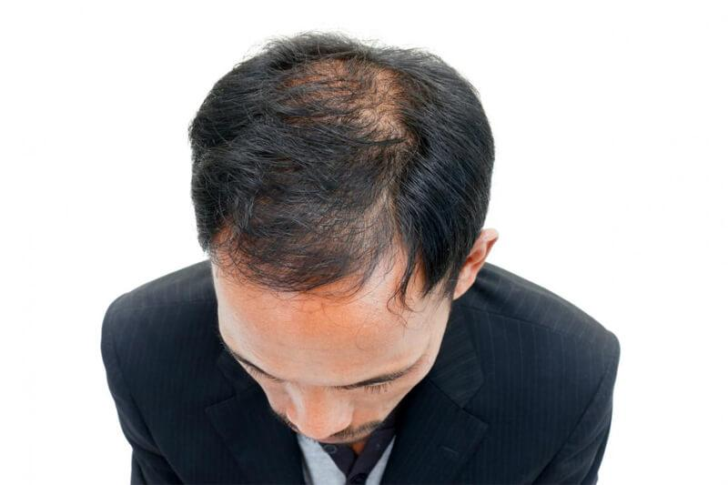 Immer mehr Männer lassen sich in der Türkei Haare transplantieren